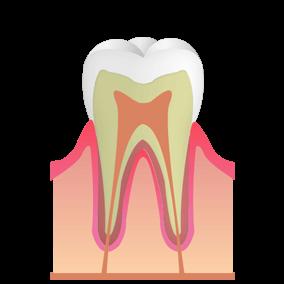 歯の表面が少し溶けている状態。痛みはない。