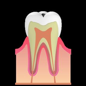 歯の表面に小穴や黒ずみができた状態。痛みはない。