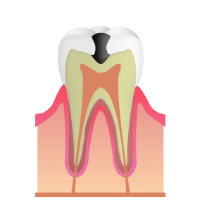 歯の内側の象牙質にまで虫歯が進行した状態。冷たいものがしみるなどの症状が顕著に。