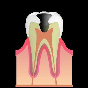 虫歯がさらに歯髄(歯の神経)にまで進行した状態