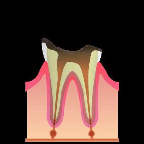 歯がほとんど溶かされてしまった状態。神経が死んだため痛みはなくなるが、歯の根の先に膿が溜まるケースも。